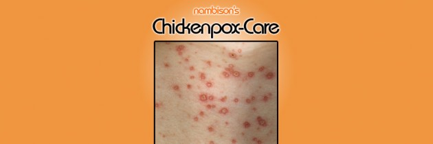 Chickenpox: Tips to prevent & treat
